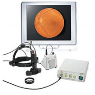 Видеоофтальмоскоп Video OMEGA 2C в Екатеринбурге