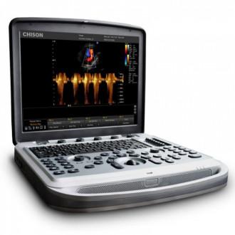 Ультразвуковой сканер SonoTouch 80 (Sonobook 6,8,9) в Екатеринбурге